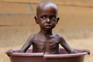 Somali CHild - Urban Hunger Crisis. Source Veterans Today (13K)