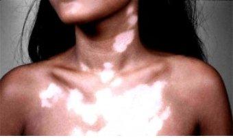 Vitiligo (11K)