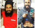 Dr. Harbir Singh Ji - Before and After